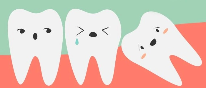 вырывать зубы